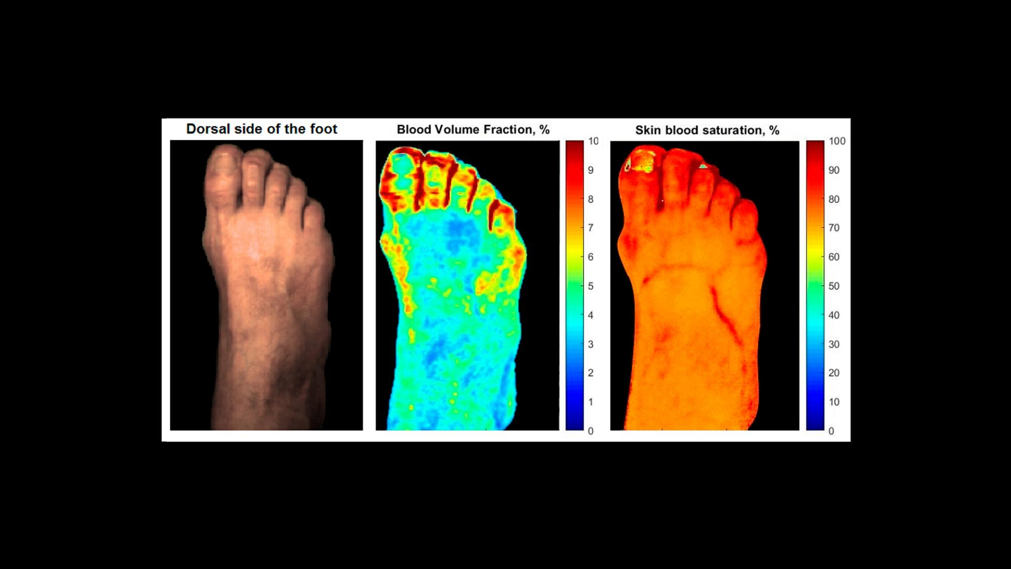 New method reveals the skin complications of diabetes